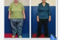 Before & after gastric sleeve