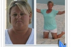 Bariatric surgery before & after