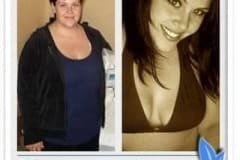 Gastric sleeve surgery patient in Mexico