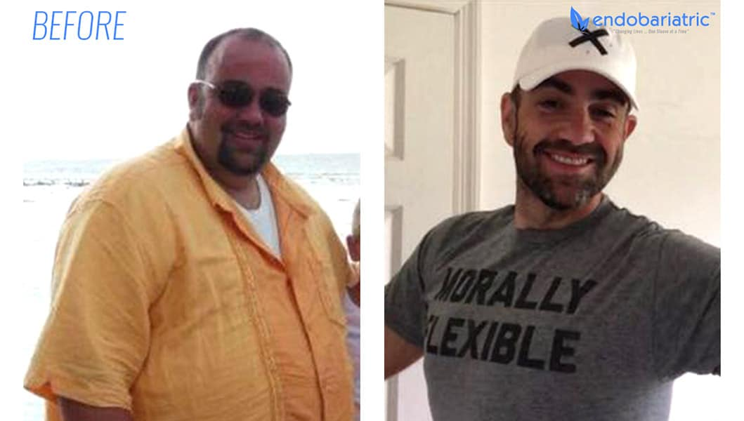 Before & after lap & gastric band alternative