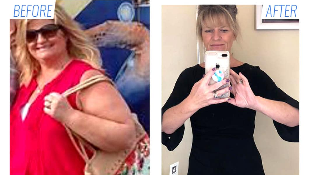 Before & after vertical sleeve gastrectomy surgery