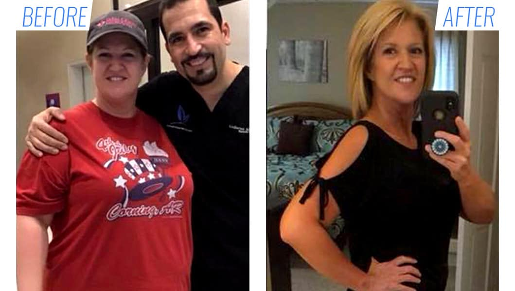 Before & after gastric sleeve surgery in Mexico