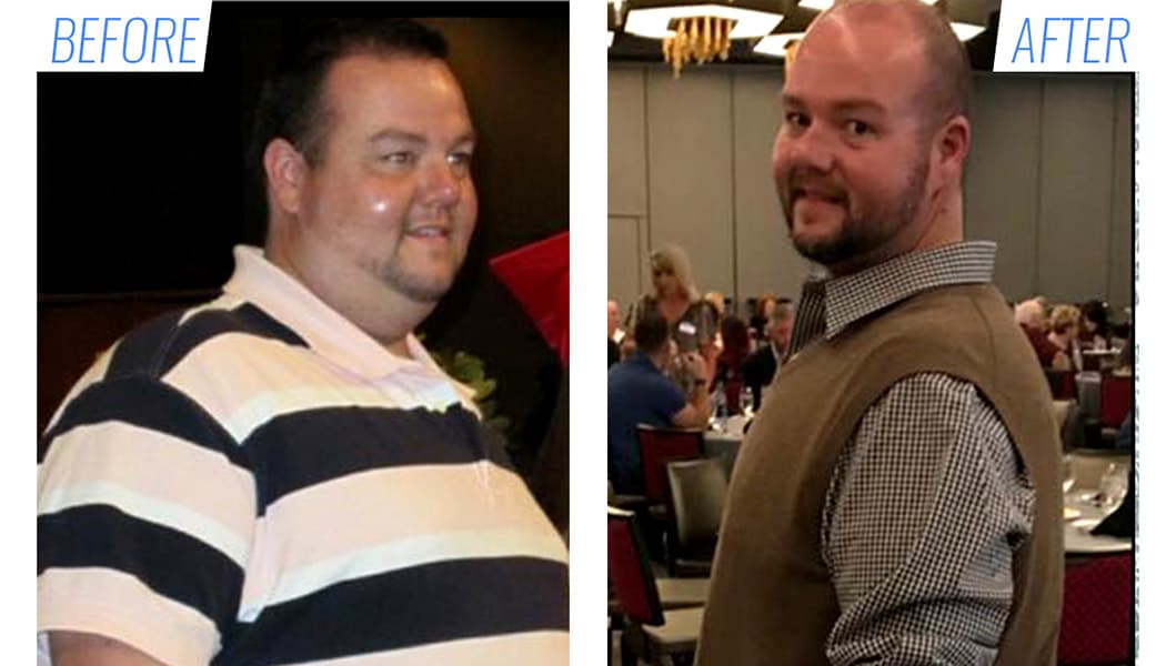 Before & after bariatric surgery in Mexico